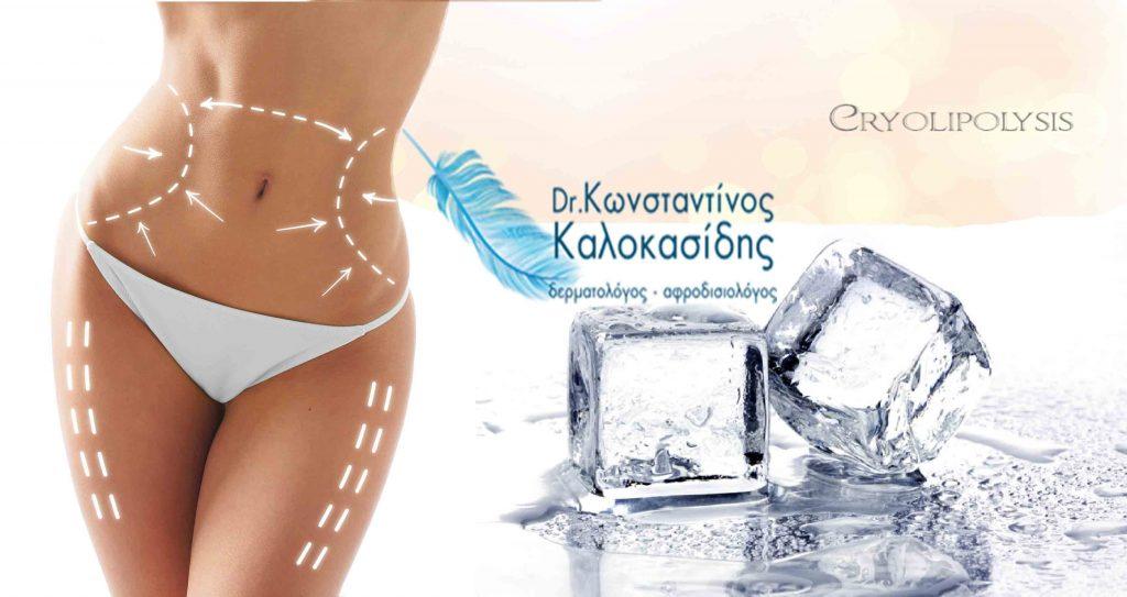 κρυολιπολυση - 3