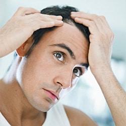 Θεραπεία Τριχόπτωσης Με Φαρμακευτική Αγωγή