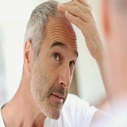 Καλυπτικές Θεραπείες Τριχόπτωσης